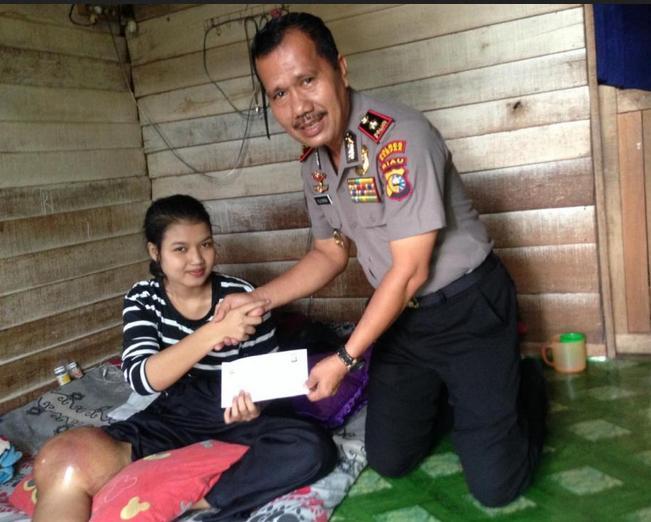Gadis Berbakat Riska Ramadila.{17) Penderita Tumor Ganas Dilutut Akan Berobat Ke RSPAD Gatot Subroto Jakarta