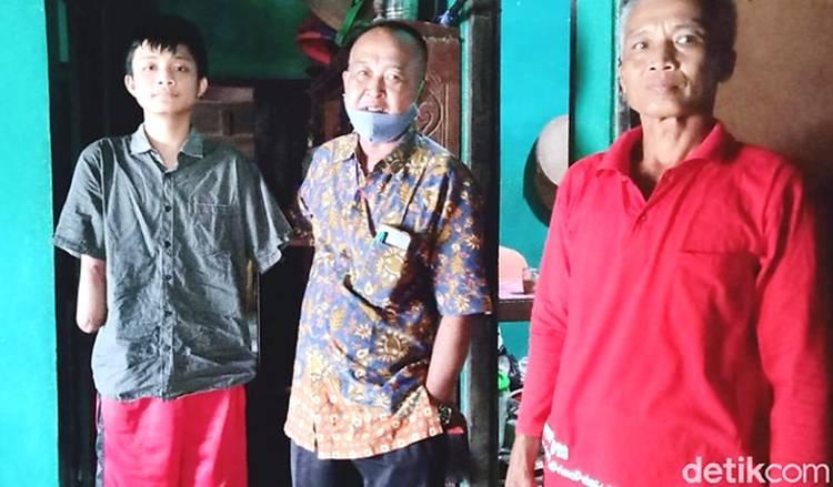 Tragedi Alfian, Siswa SMK yang Kehilangan 2 Tangan Saat PKL: Tetap Semangat dan Ingin Bisa Kuliah