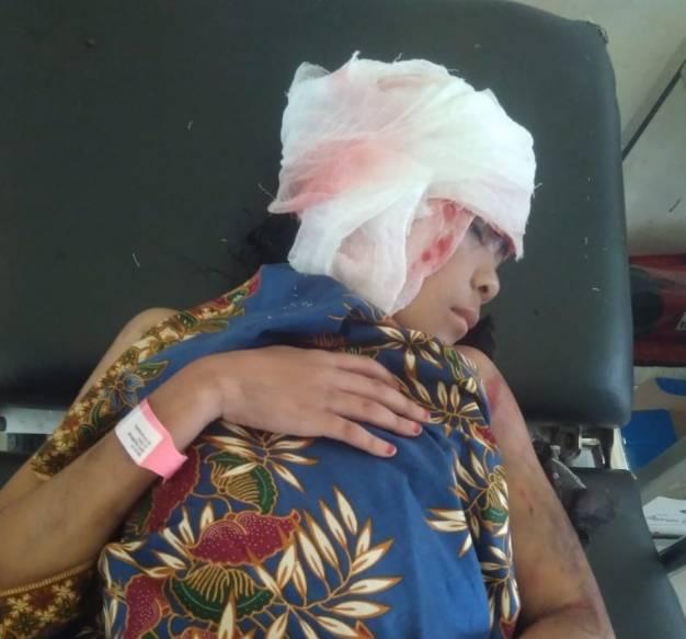 Naas Bagi Gadis Belia Ini Rambut dan Kulit Kepala Terkelupas Di Lilit As Pompong