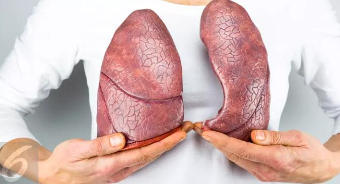 Waspadai Kanker Paru Ada di Tubuh Anda dengan 5 Ciri Ini
