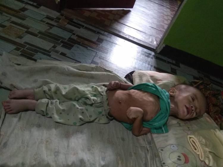 A. Sukur, Balita 15 Bulan Derita Gizi Buruk, Butuh Bantuan Biaya Pengobatan Segera