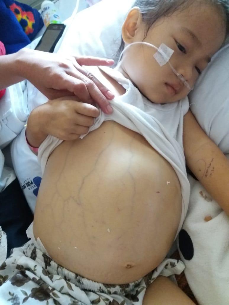 DPD IWO Inhil Peduli Sesama Membuka Dompet Untuk Nazwa, Bocah Penderita Pembengkakan Empedu Hati.