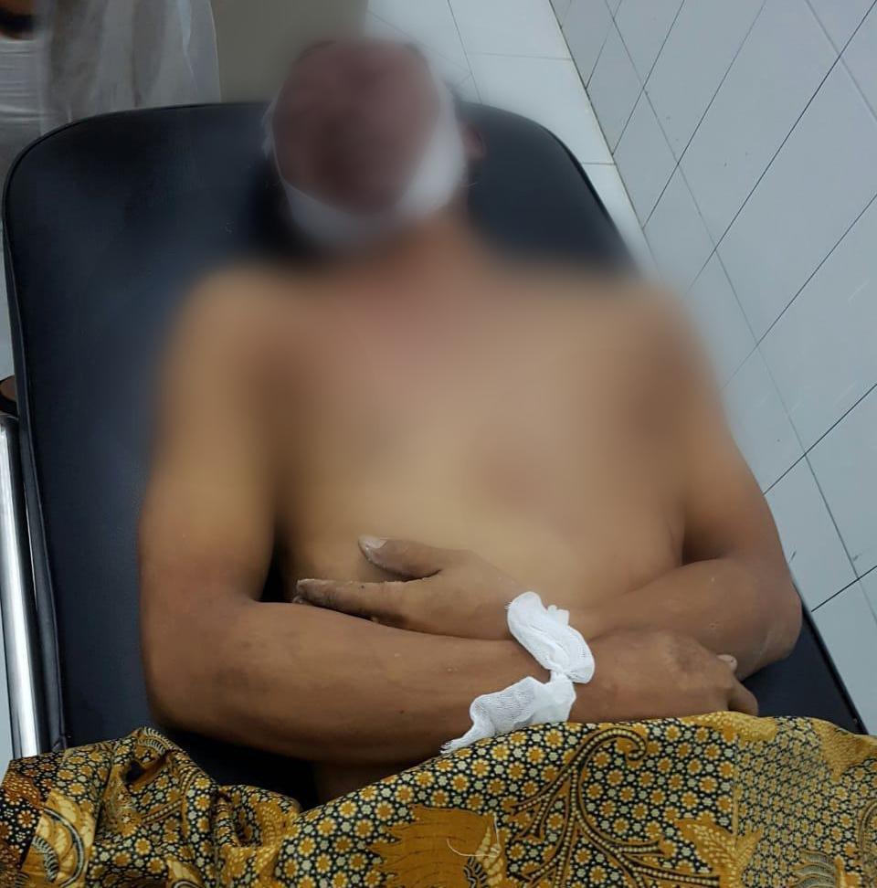 Candai Rekan Kerja, Warga Mojokerto Terjepit Saat Melompat dari Lift di Rohil